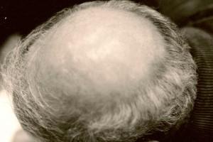 Kopf (Arman),